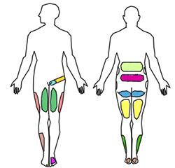 Artrose (Artrose Facetária Lombar)   Entenda sua doença